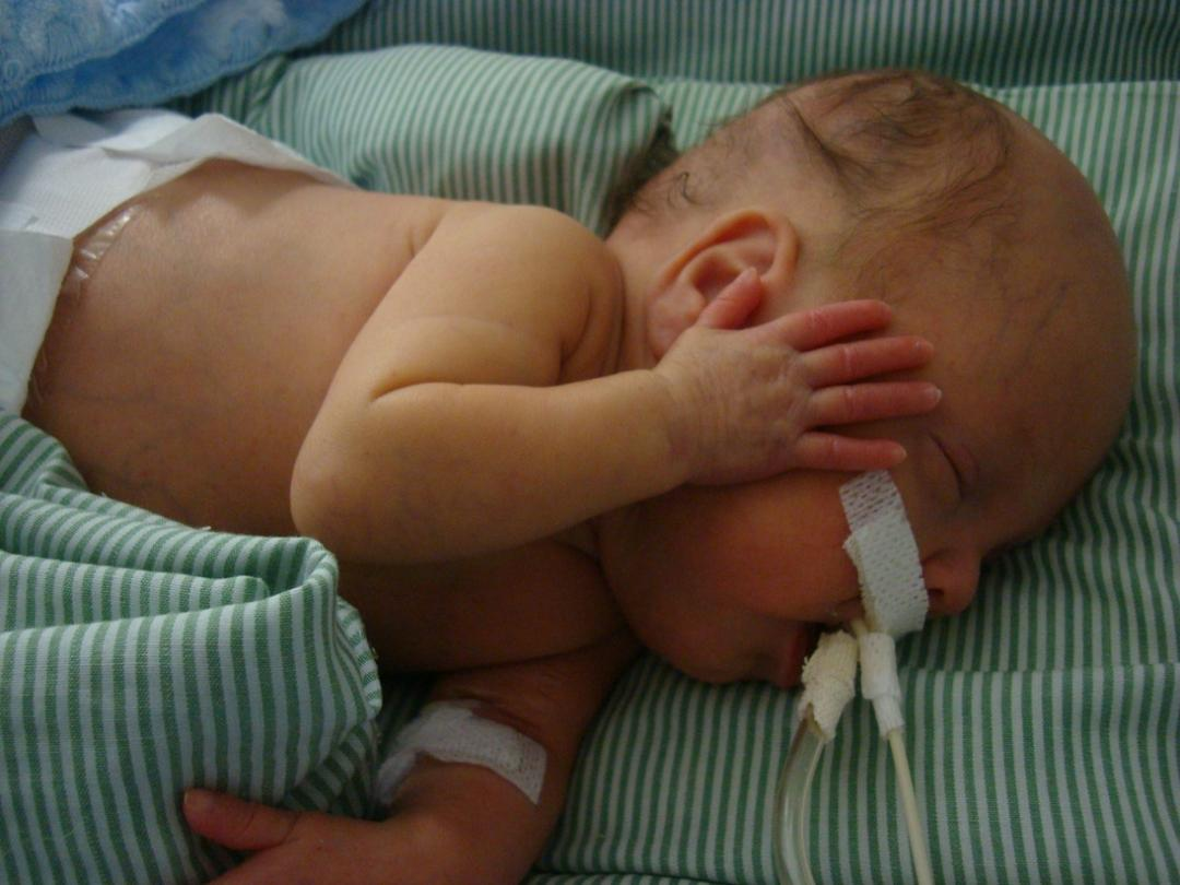 Novembro roxo: Como são os dias em uma UTI Neonotal?