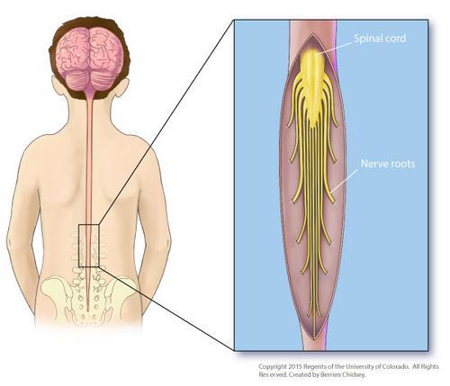Rizotomia Dorsal Seletiva, saiba mais sobre esse procedimento em crianças com Paralisia Cerebral