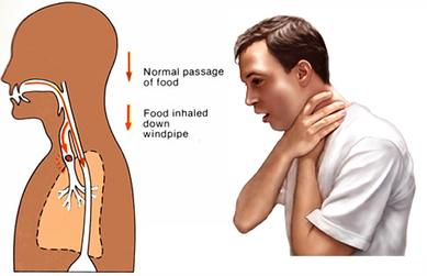 DISFAGIA: dificuldade de engolir