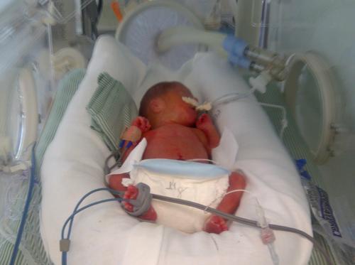 Prematuridade: Você é a melhor mãe que seu filho poderia ter