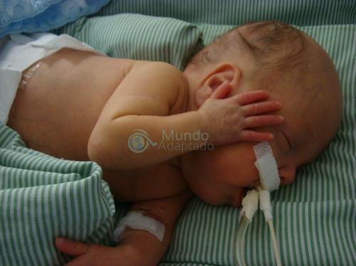 Novembro roxo: Como são os dias em uma UTI Neonatal?