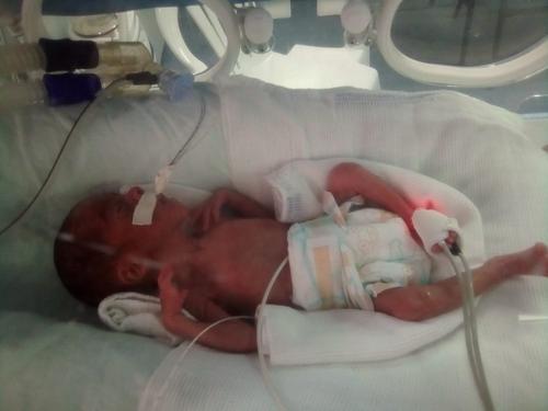 Meu milagre de 505 gramas, a prematuridade me ensina dia a pós dia.